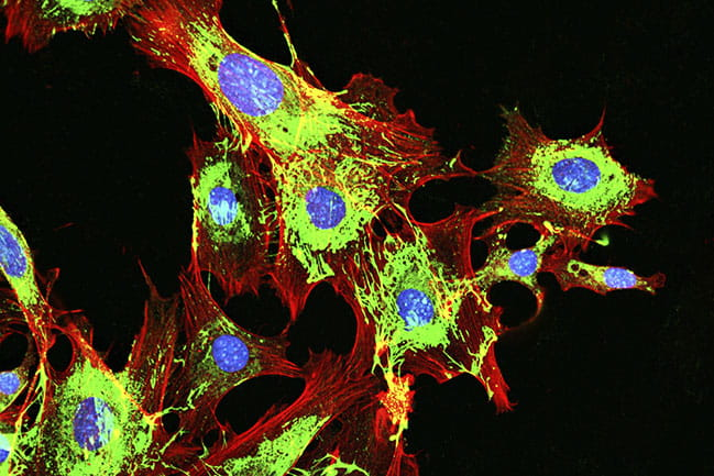 imaging of metastatic cancer cells spreading on the surrounding tissue